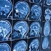 IRM du cerveau