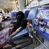 Une femme est branchée à l'équipement de dialyse.