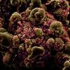 Une photo, prise au microscope électronique à balayage, de cellules infectées par le coronavirus qui cause la COVID-19.