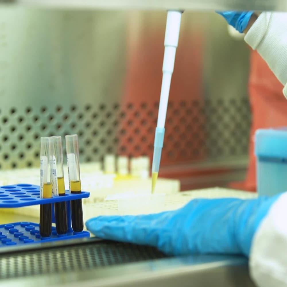 Une pipette dépose le plasma d'un échantillon sanguin dans un récipient.