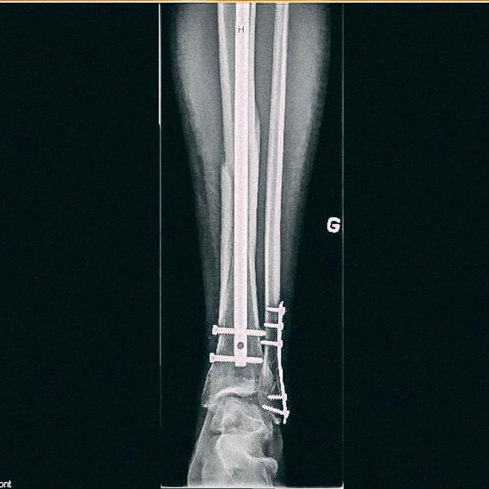 Rayon X d'une jambe montrant une plaque de métal et sept vis.