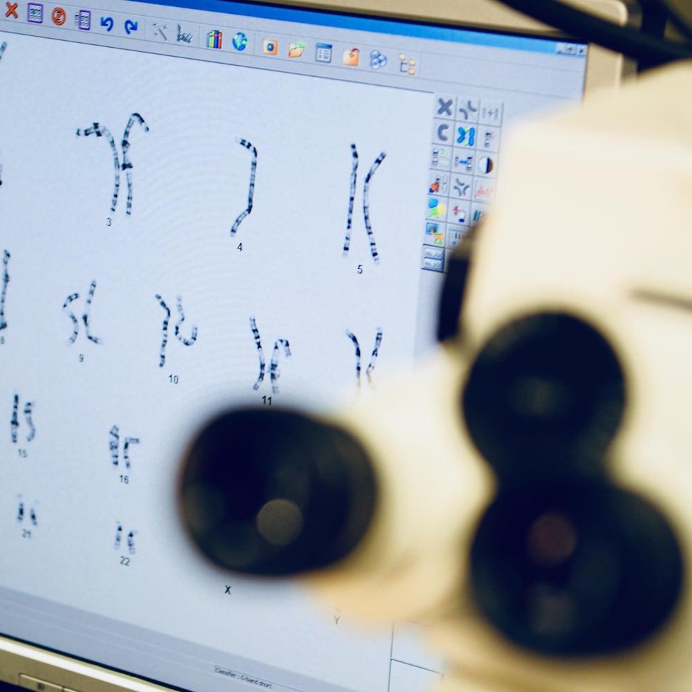 Arrangement des chromosomes d'une cellule spécifique d'un individu.