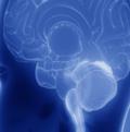 Image de synthèse du profil du crâne d'un individu, dans les teintes bleutées, mettant en relief le cerveau de l'être humain.