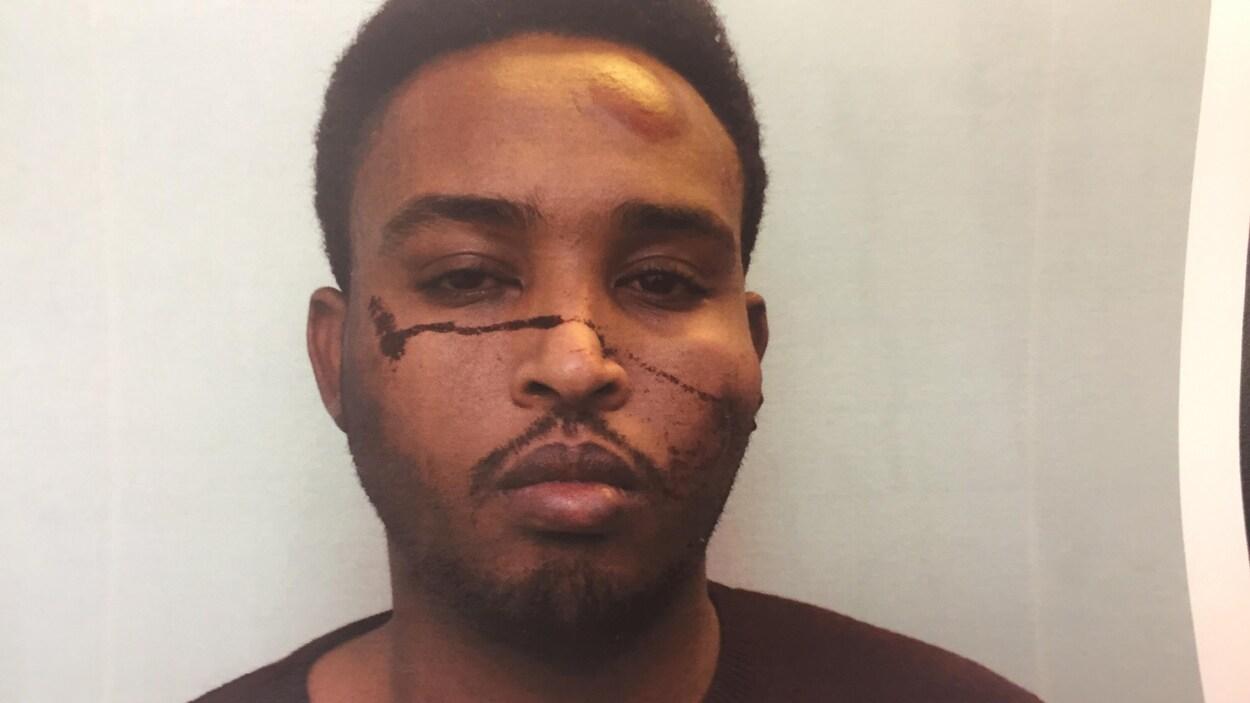 Photo d'Abdulahi Sharif vu de près. Il y a du sang sur sa joue et ce qui semble être une large ecchymose sur son front.