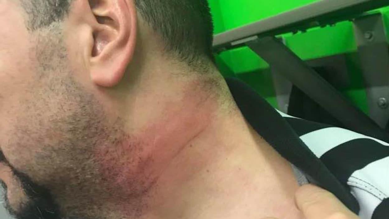 L'arbitre Benjamin Paradis a reçu un coup de bâton au coup à la toute fin d'une rencontre de hockey.