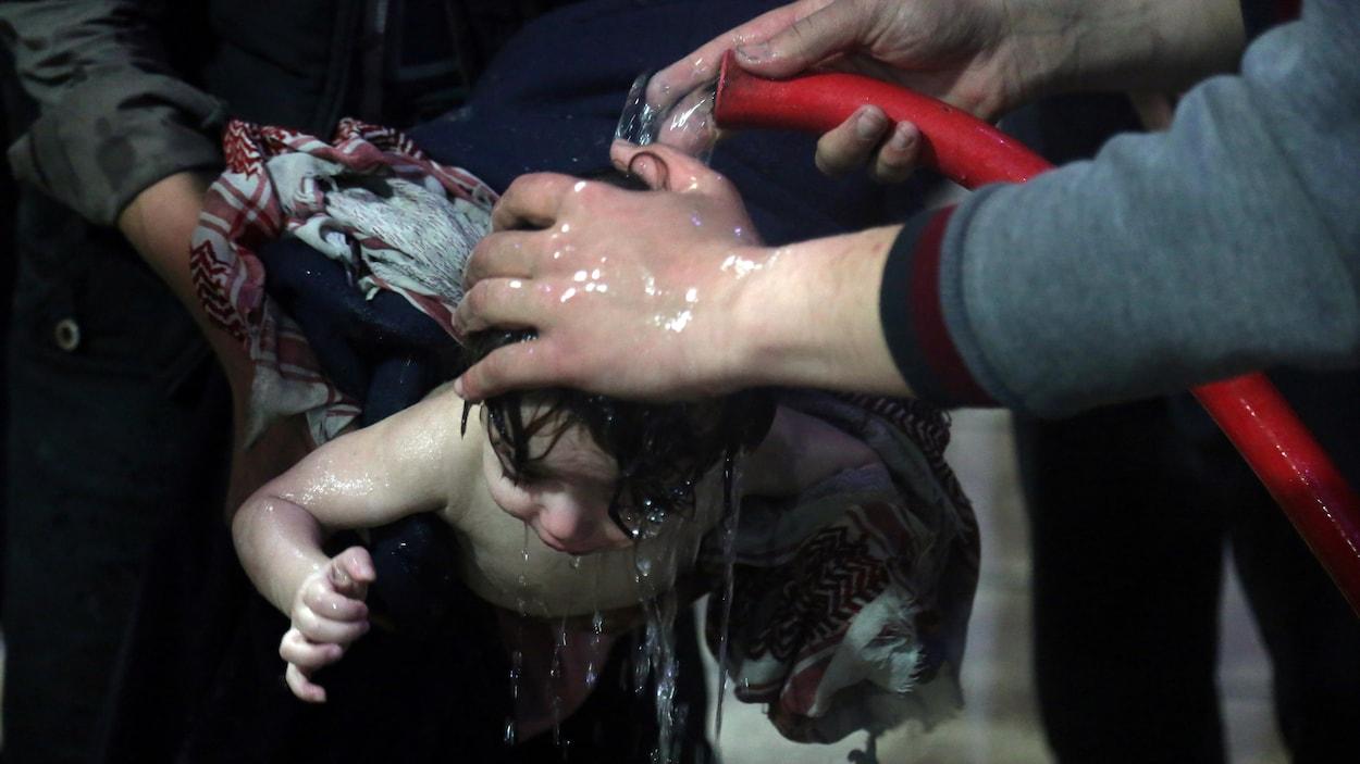 Un enfant est traité dans un hôpital de Douma, dans l'est de la Ghouta, en Syrie.