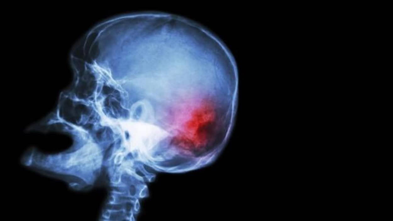 Rayons X d'un cerveau lors d'un accident vasculaire cérébral (AVC).