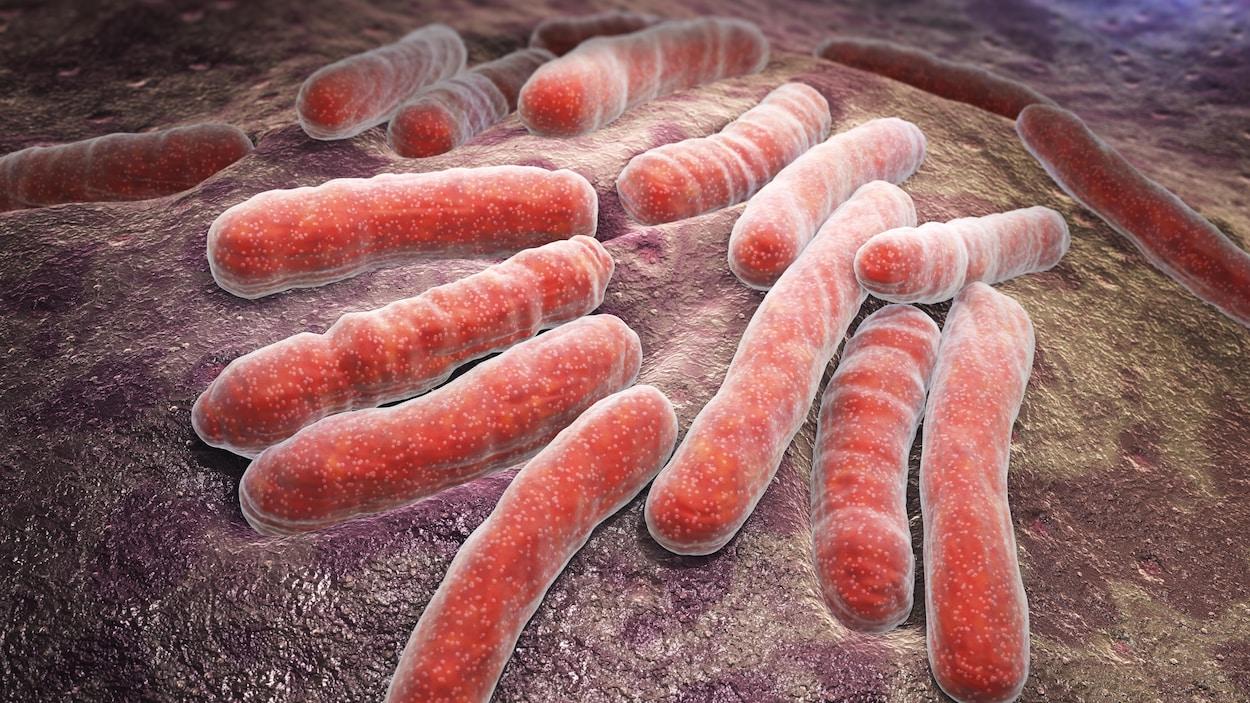 La bactérie de la tuberculose.