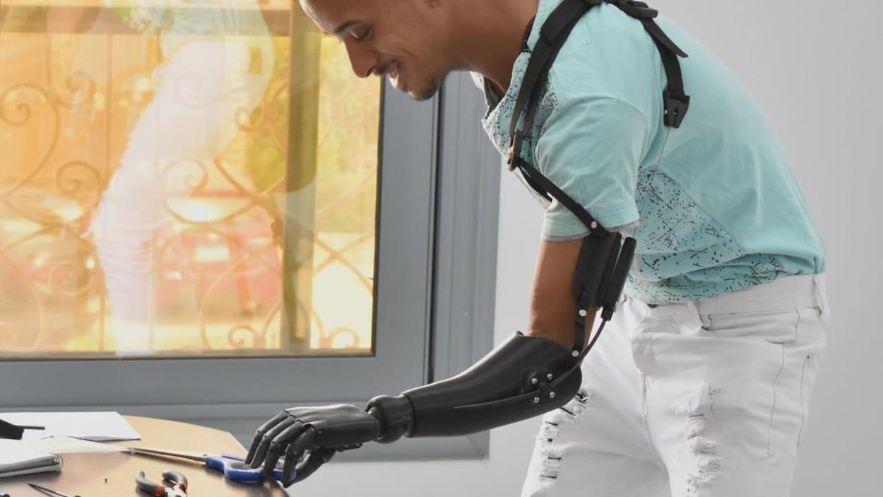 Un homme avec un bras prothétique.