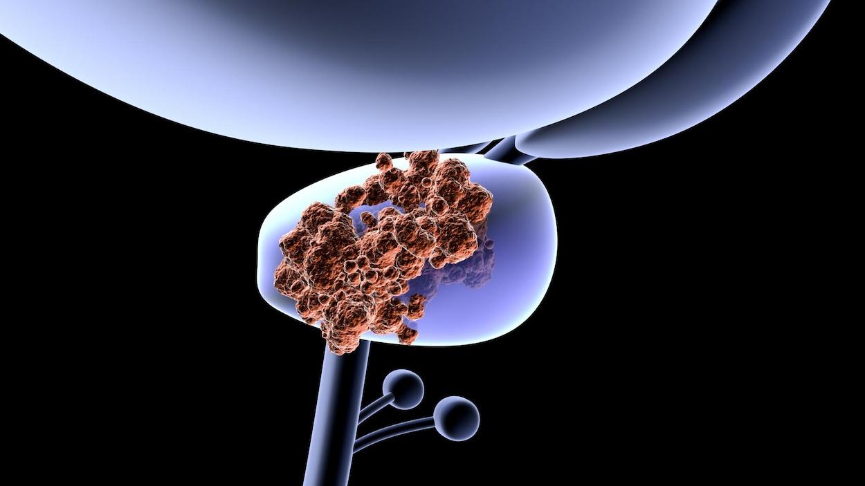 Illustration montrant une prostate recouverte de tumeurs cancéreuses.