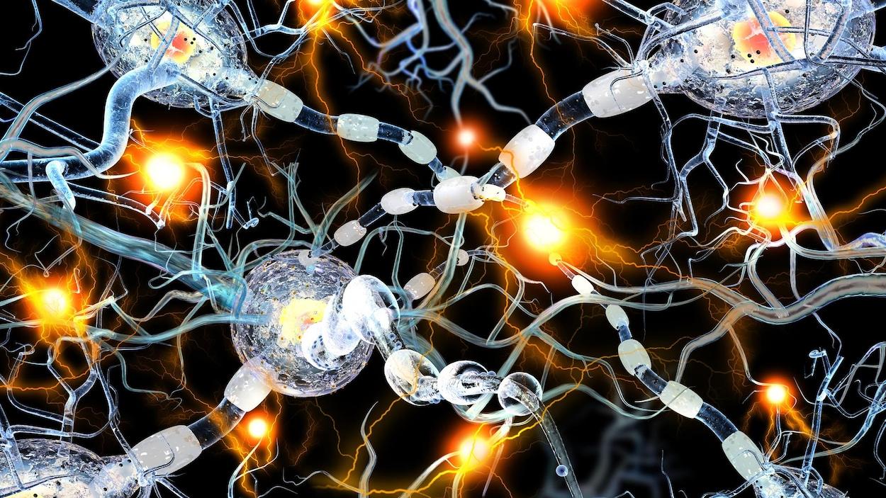 Représentation artistique du mauvais fonctionnement des cellules cérébrales impliqué dans l'apparition de maladies neurodégénératives comme la maladie de Huntington.