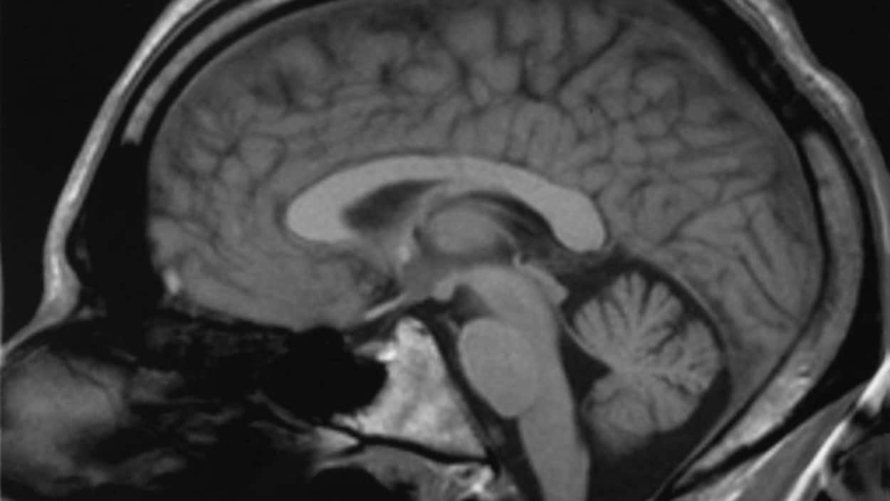 Le cortex cingulaire d'un cerveau humain, tel qu'illustré grâce à une imagerie par résonance magnétique