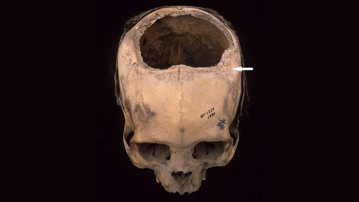 Un crâne