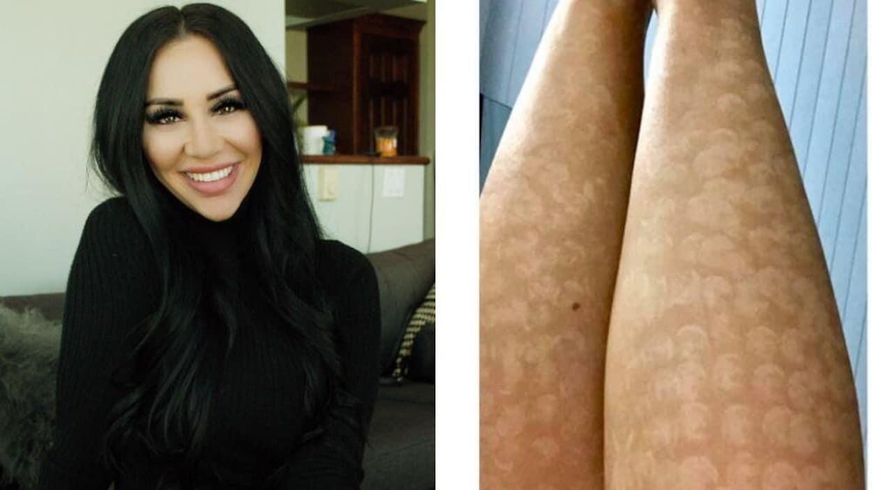 Photo d'une femme et photo de ses jambes cicatrisées.