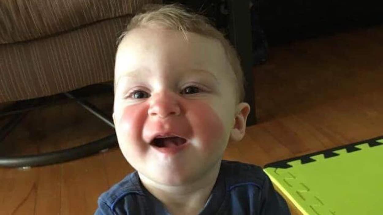Un enfant montrant d'importantes rougeurs sur le nez et les joues