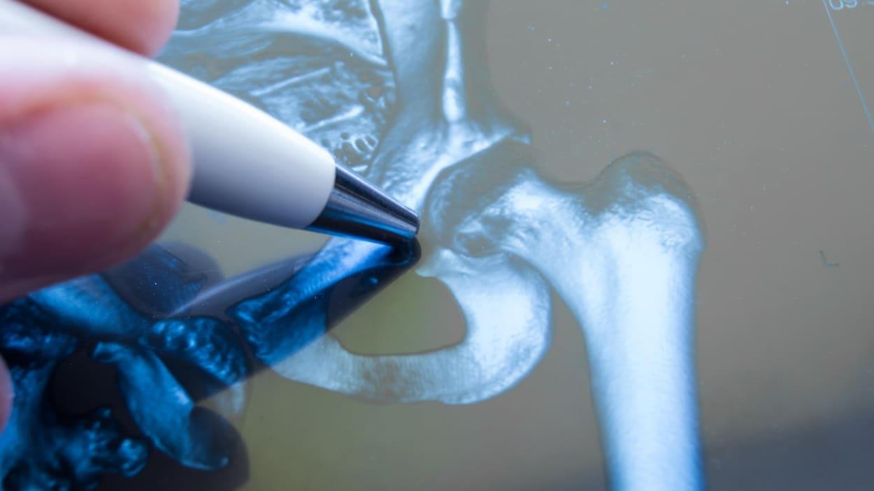 Une radiographie de la hanche.