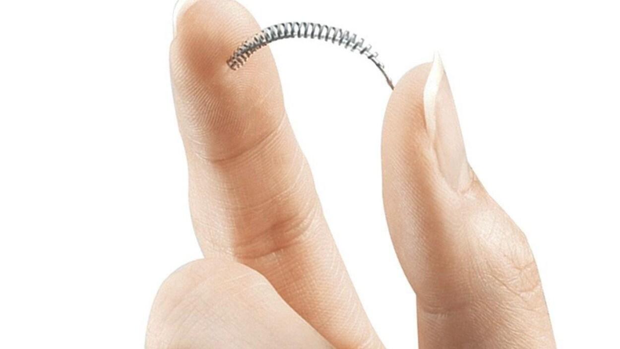 L'implant Essure.
