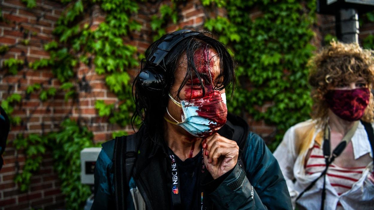 Une femme portant un masque et des écouteurs a le visage ensanglanté.