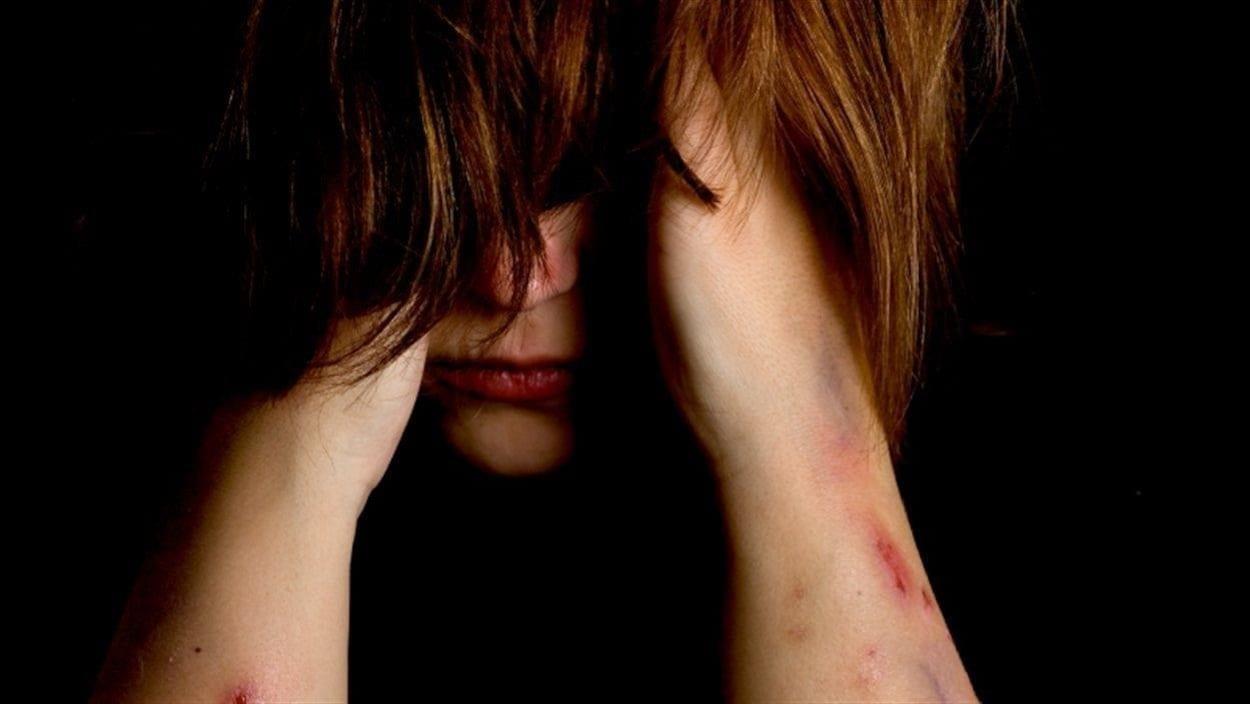 Les jeunes en détresse sont de plus en plus nombreux à s'infliger des blessures corporelles.