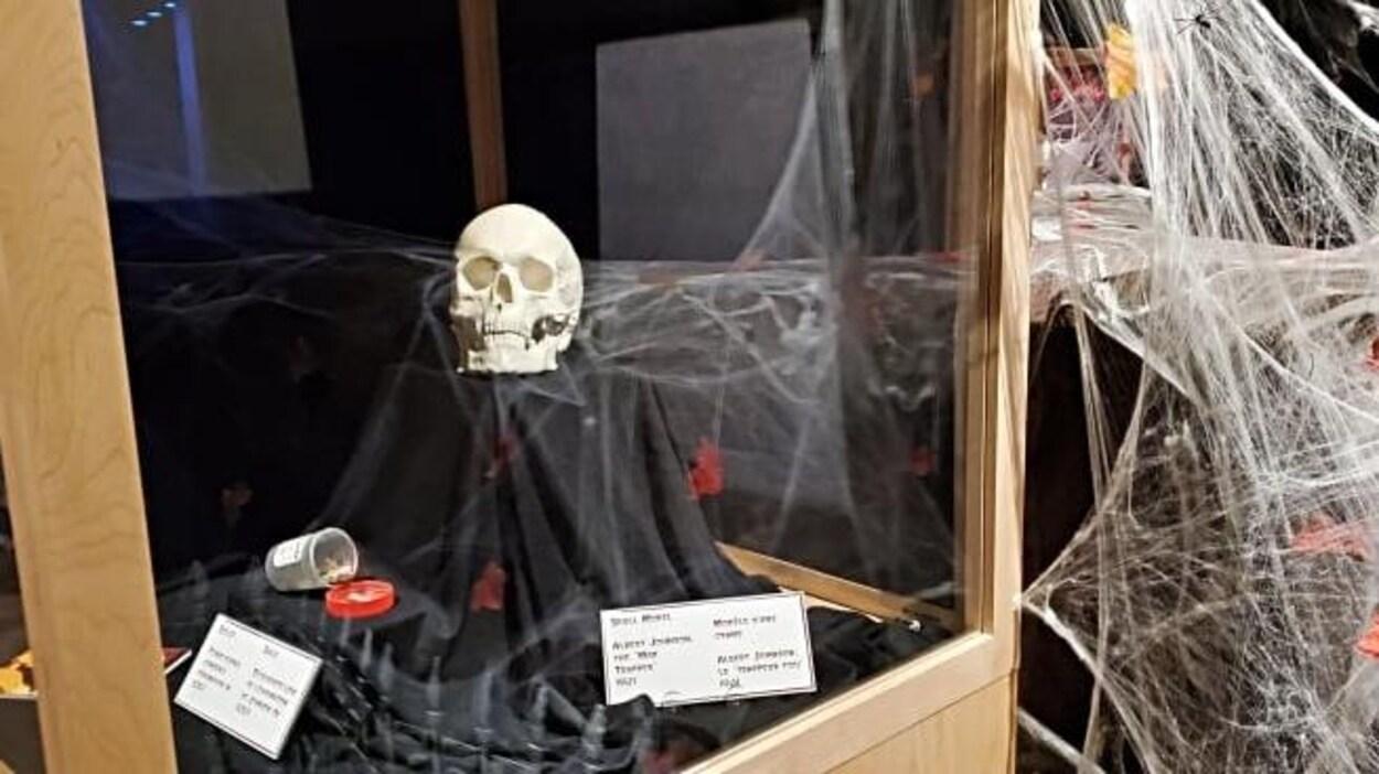 Vue d'un crâne exposé.