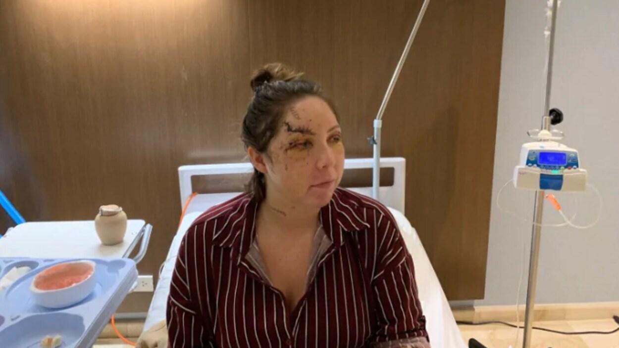 Une femme blessée au visage sur un lit d'hôpital