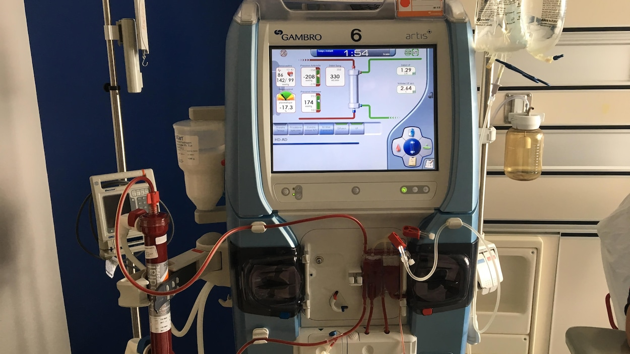 Une machine d'hémodialyse dans un hôpital.