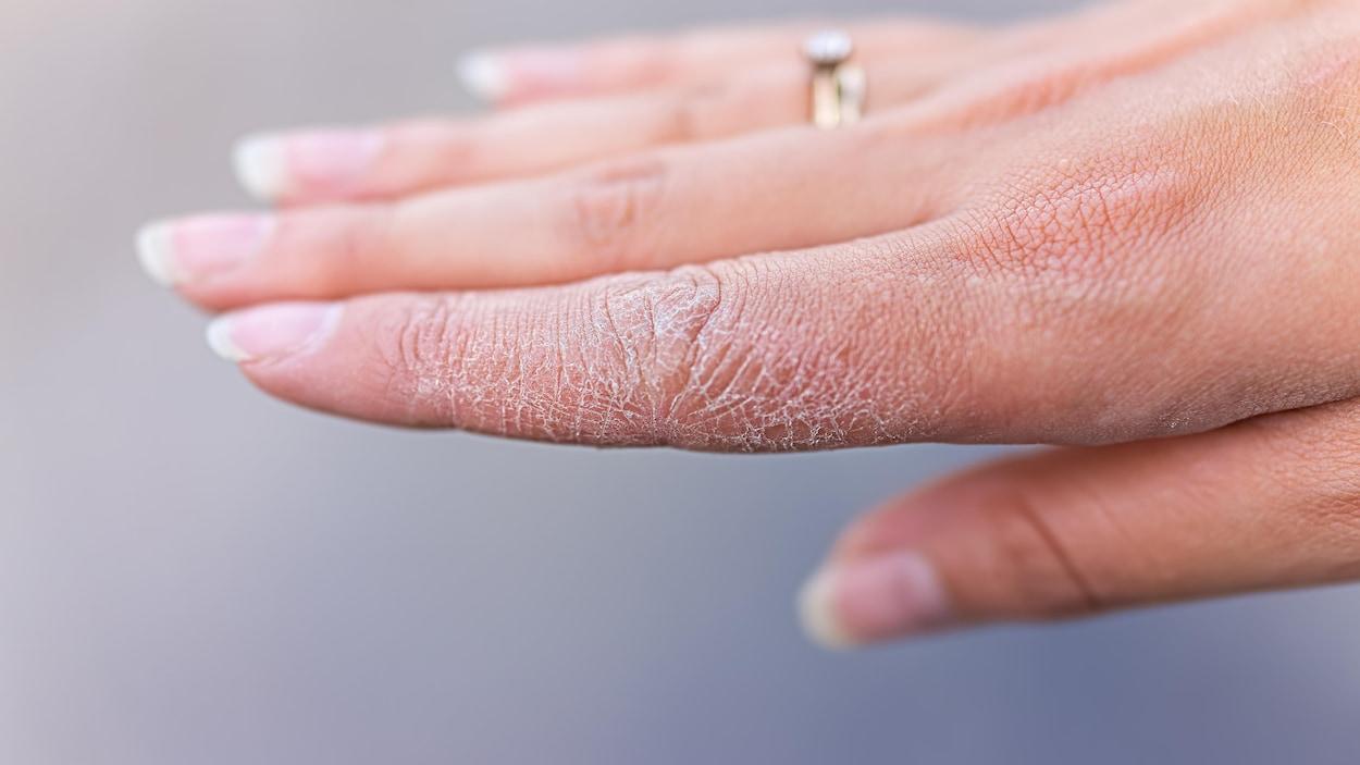Une main de femme avec la peau sèche et fissurée.