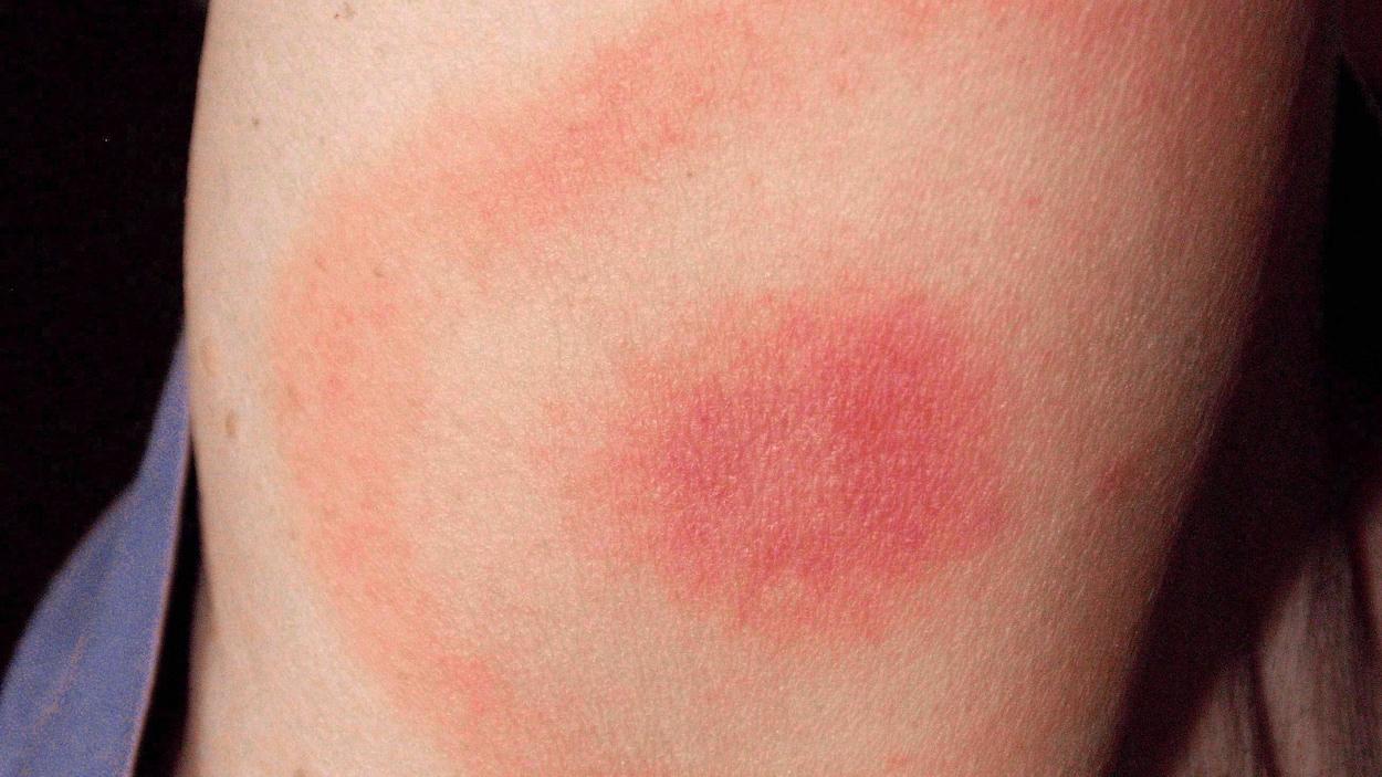 Rougeur typique de celle causée par une morsure de tique infectée par une bactérie, sur l'avant-bras d'une femme du Maryland qui a par la suite développé la maladie de Lyme