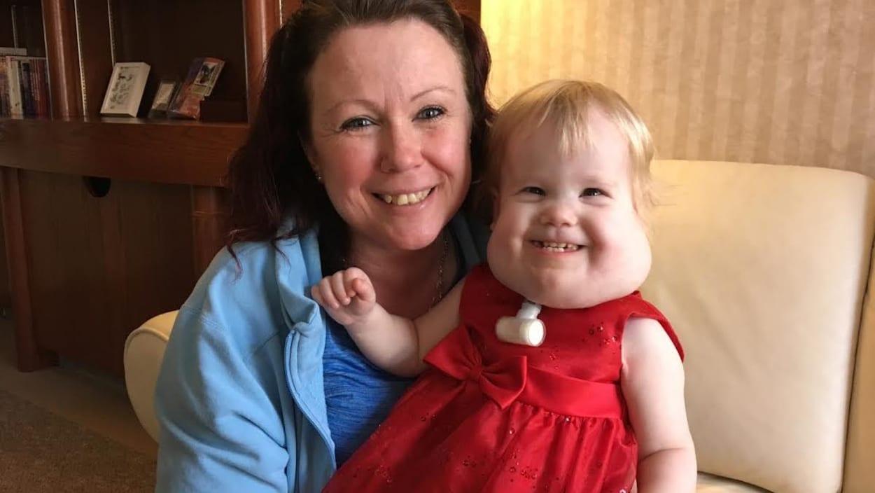 Une maman et sa petite fille atteinte d'une anomalie congénitale.