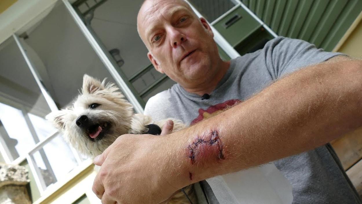 Un homme montre les points de suture sur son bras.