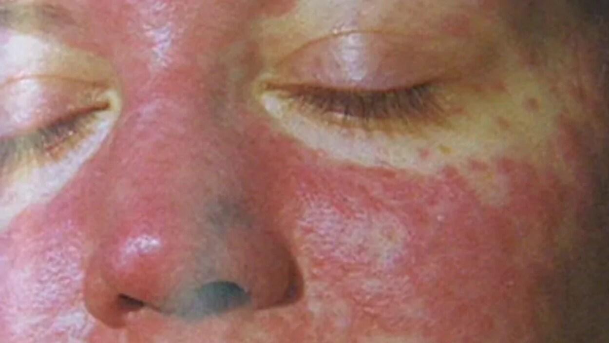 La rougeole est l'une des maladies les plus contagieuses. Le virus se propage le plus souvent au début de la maladie ou avant que les personnes sachent qu'elles ont la rougeole.
