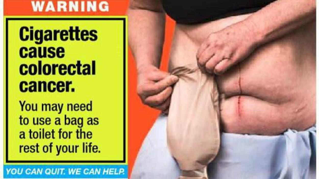 Image d'un paquet de cigarettes avec une image choc montrant un homme avec une poche pour colostomie.