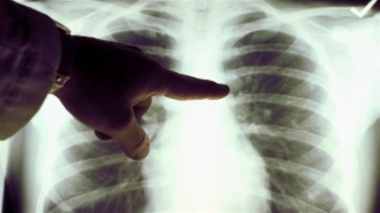 Un doigt montre un point précis sur une radiographie de poumons.
