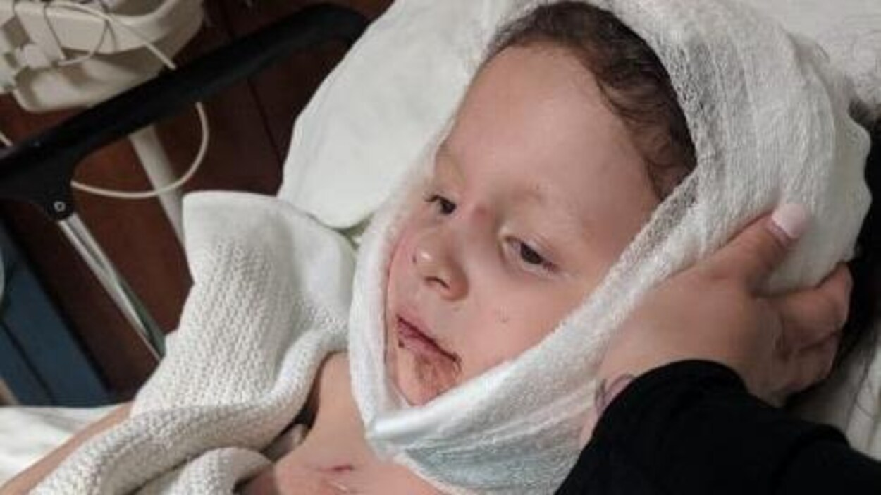 Une jeune fille dans un lit d'hôpital, un bandage à la tête.