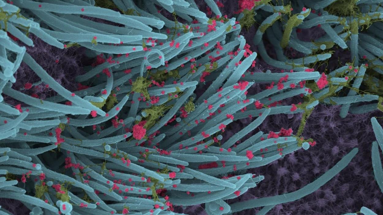 Image en microscopie électronique à balayage montrant des virions.