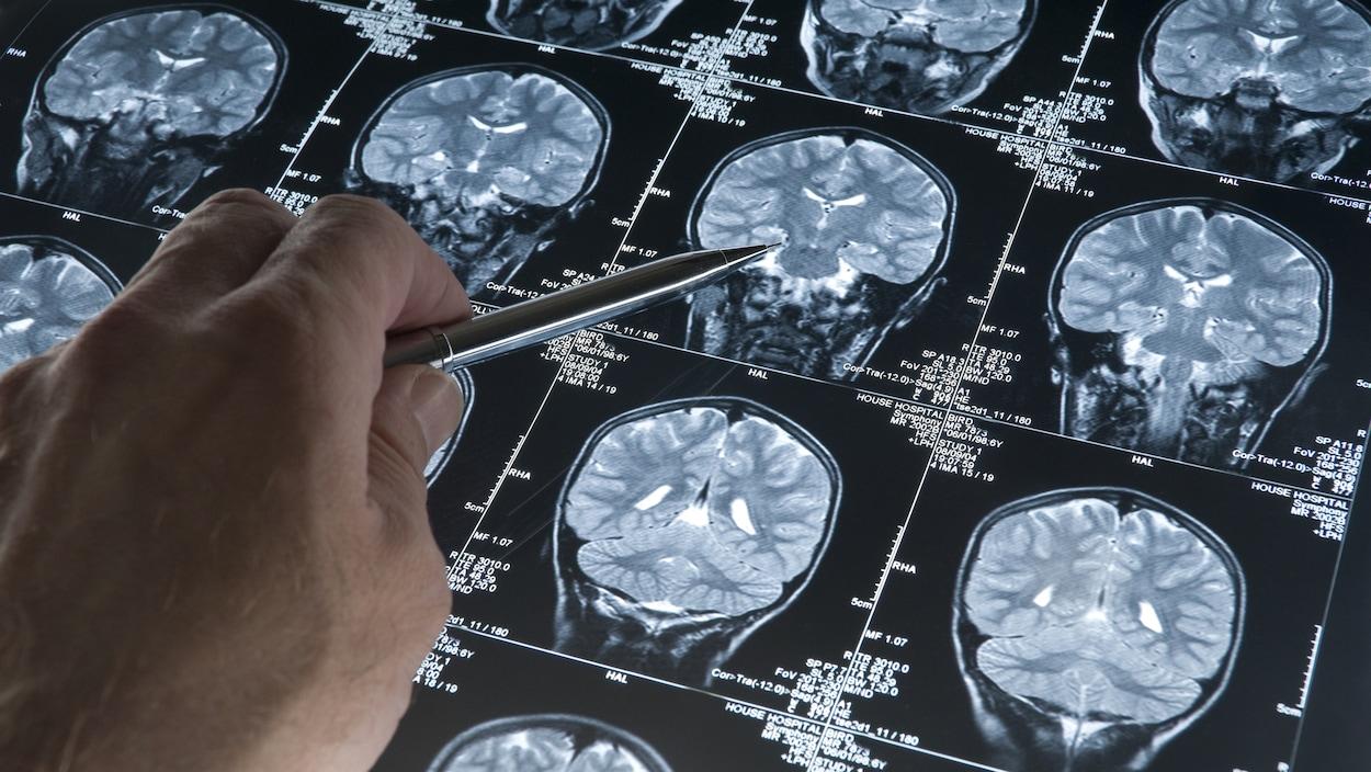 Des radiographies d'un cerveau.