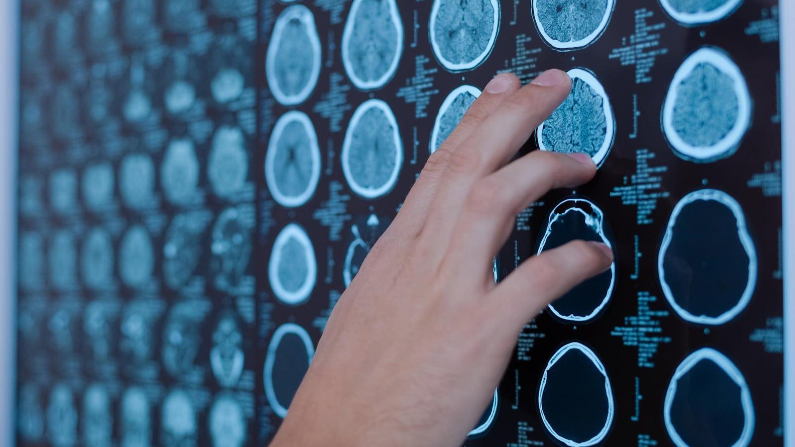 Un docteur pointe une image de cerveau.