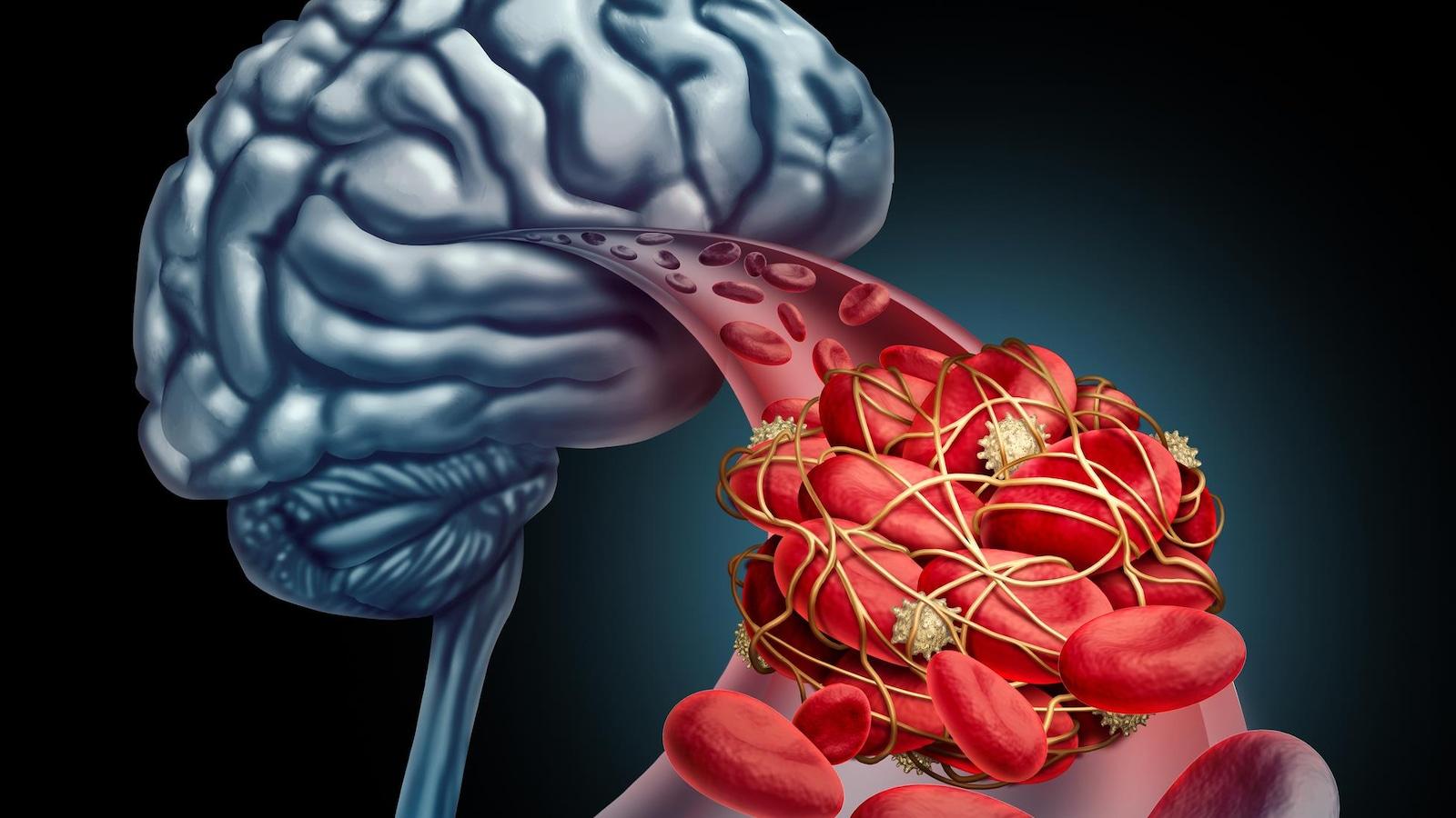 Illustration d'un caillot dans un vaisseau sanguin du cerveau.