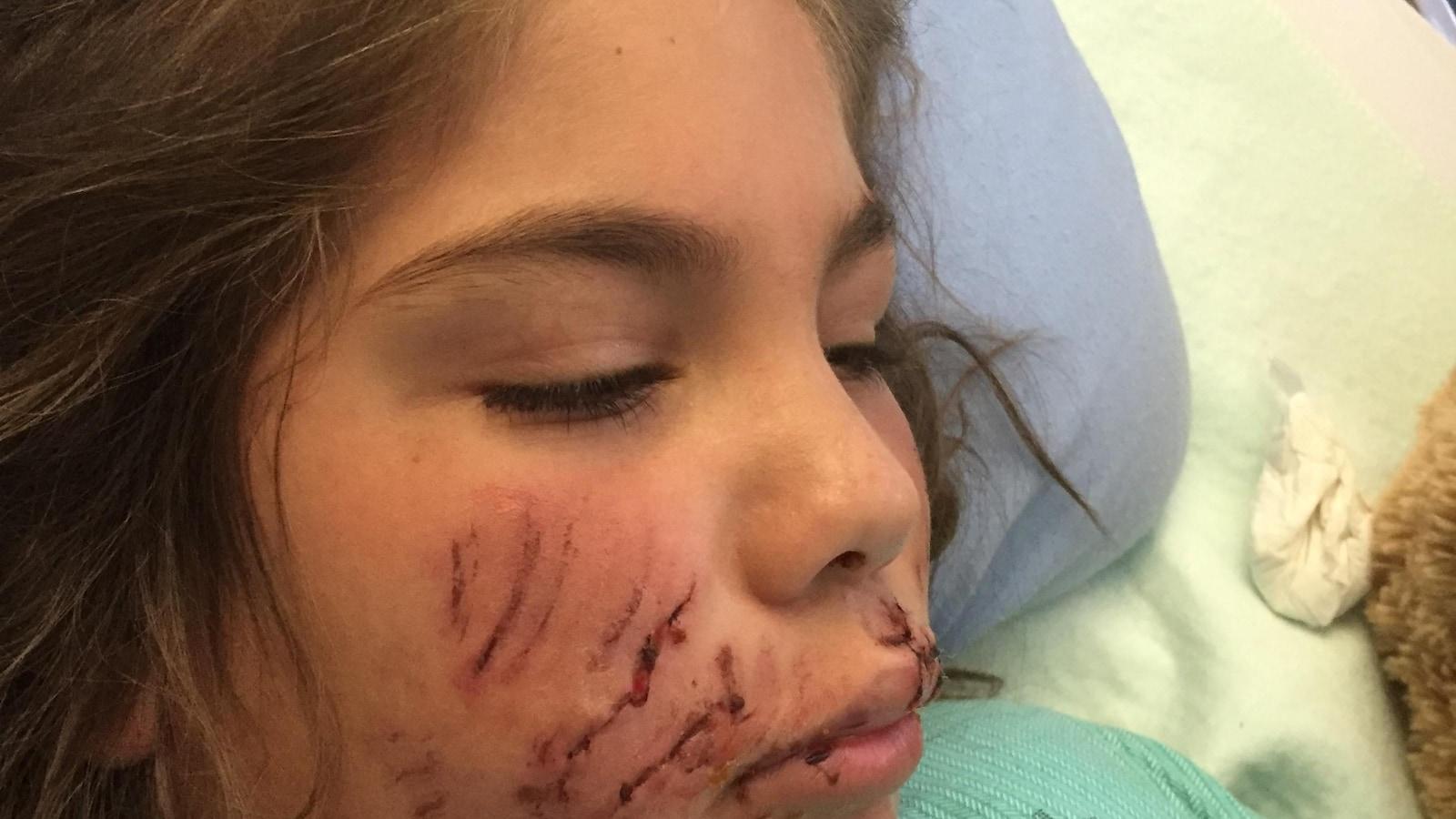 9a68f9759428c Une fillette de 9 ans défigurée par un pitbull