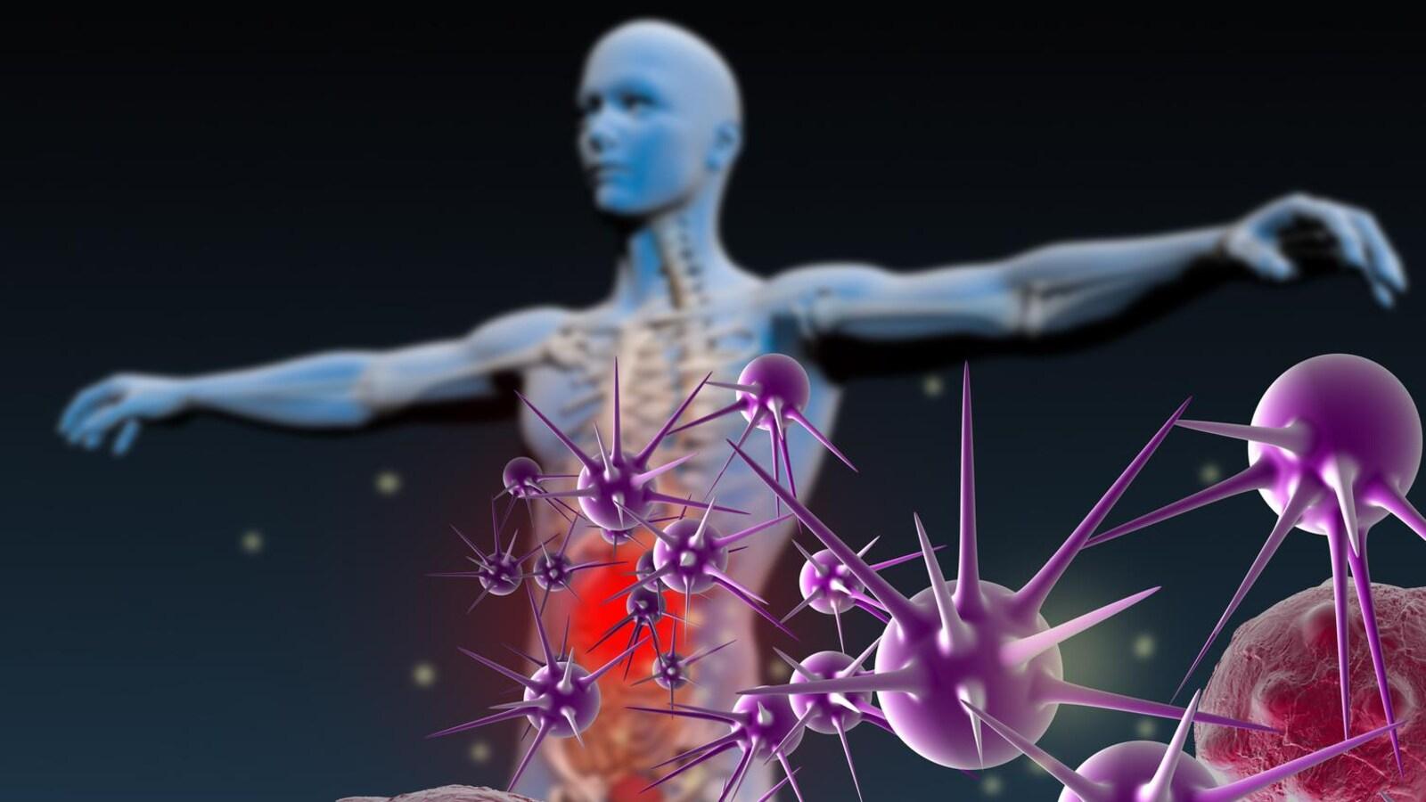 Représentation artistique de virus et bactéries qui attaquent le système immunitaire d'un humain.