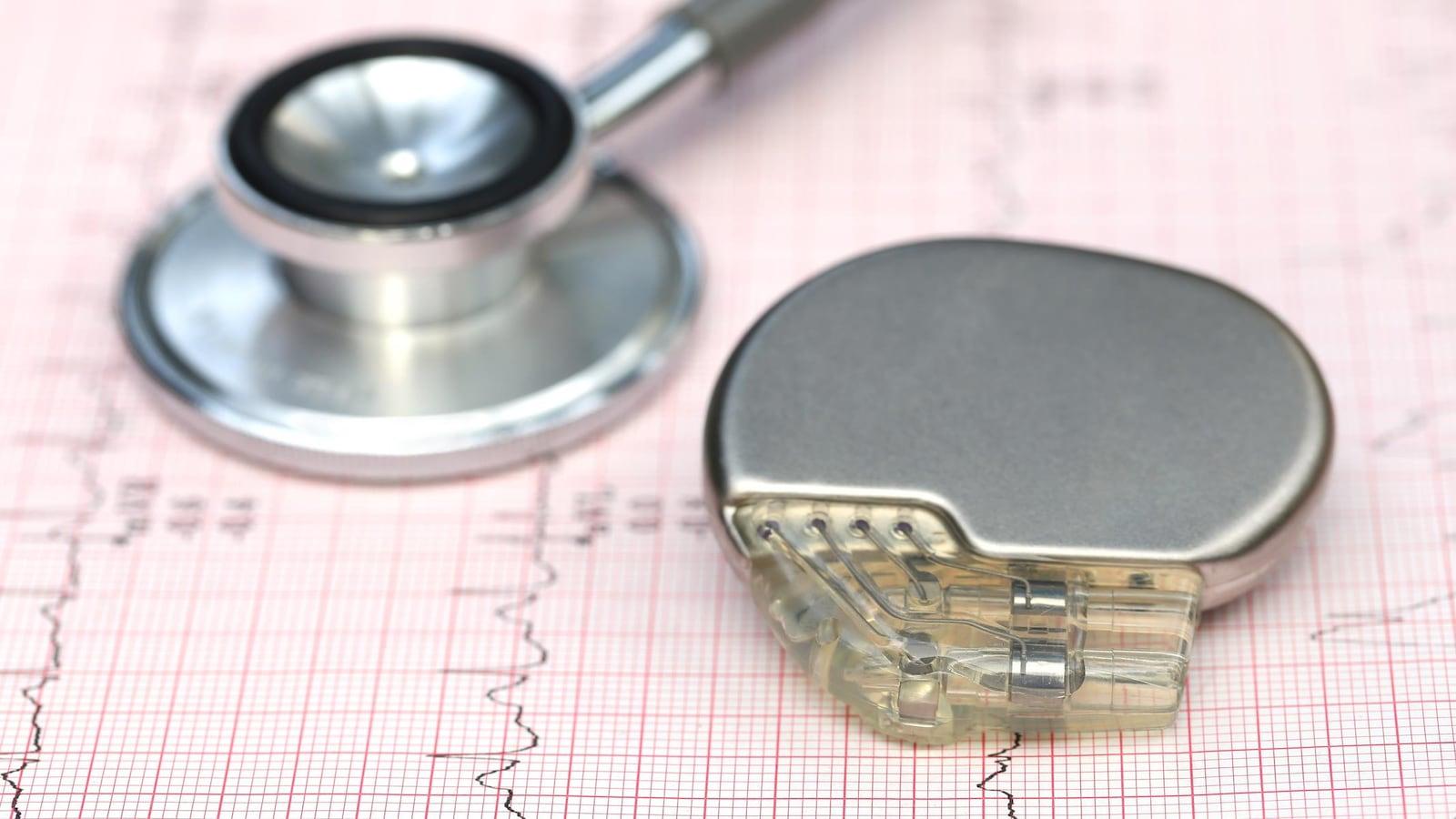 Un gros plan sur un stimulateur cardiaque posé sur une feuille de papier quadrillée, près d'un stéthoscope.