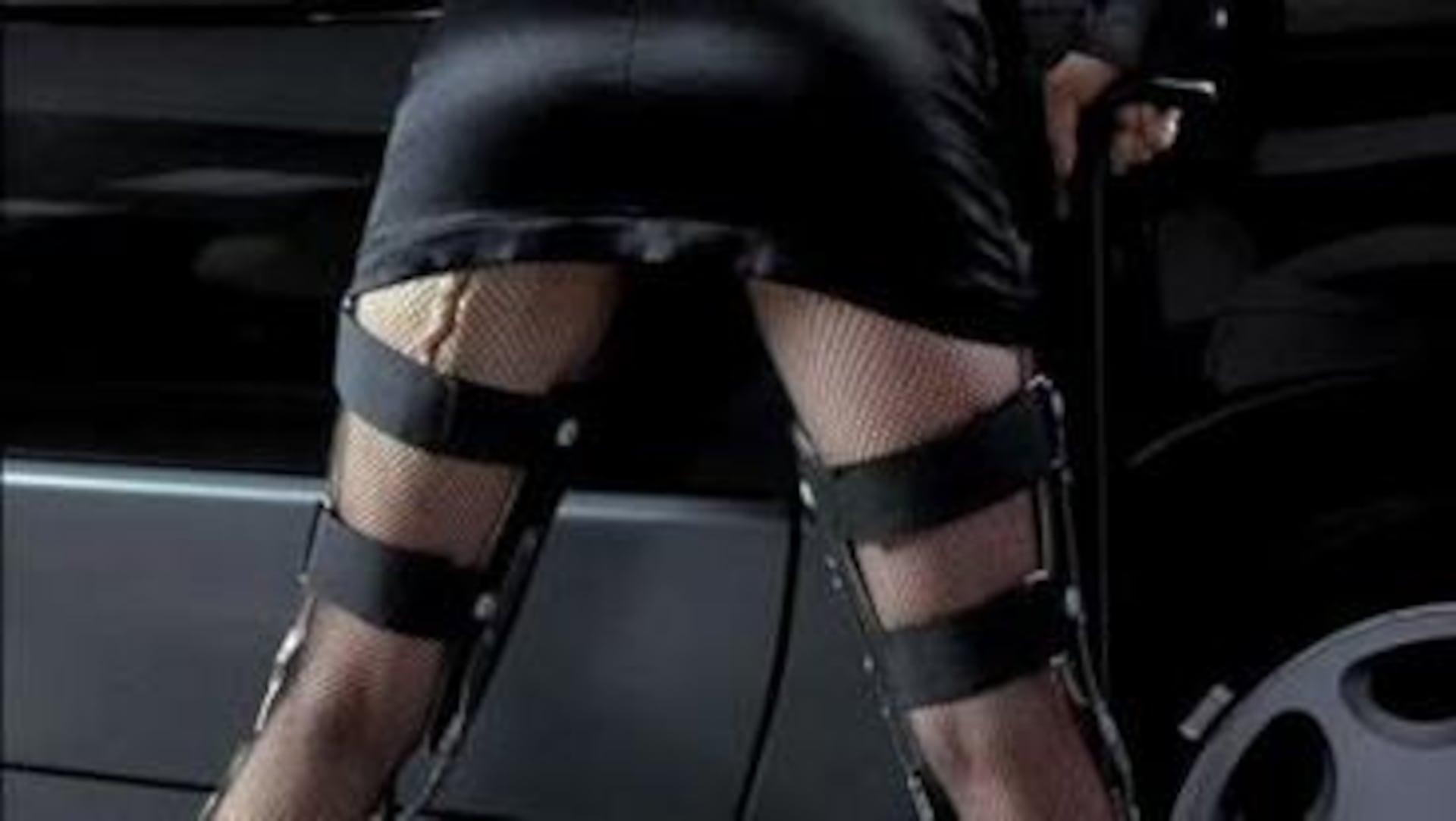 Une femme penchée vers une voiture, en mini-jupe, bas résille et attelles orthopédiques