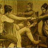 Illustration d'époque montrant une femme en travail, assise sur une chaise avec un homme qui la tient sous les bras. Une sage-femme est agenouillée à ses pieds et deux autres femmes lui tiennent les mains.
