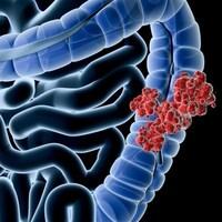 Représentation d'un cancer colorectal  Photo :  iStockphoto