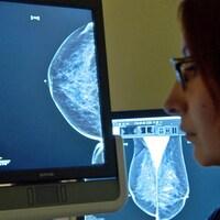 L'image d'une mammographie sur un écran