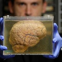 Un scientifique exhibe un bocal rempli d'une solution dans laquelle trempe un cerveau humain.