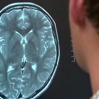 Un médecin examine une image à rayons X du cerveau d'un adolescent qui a subi une commotion cérébrale.