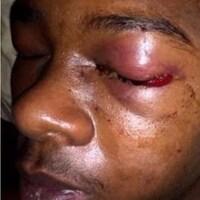 Dafonte Miller avant et après la confrontation, lorsque son oeil gauche est gonflé et sa paupière est fermée.