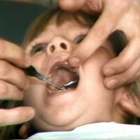 Une enfant d'âge préscolaire, la bouche grande ouverte, dont les dents sont examinées avec un instrument de dentiste.