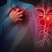 Illustration d'un homme victime d'une crise cardiaque.